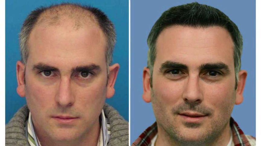 What Are The Best Male Hair Transplants Tel Aviv